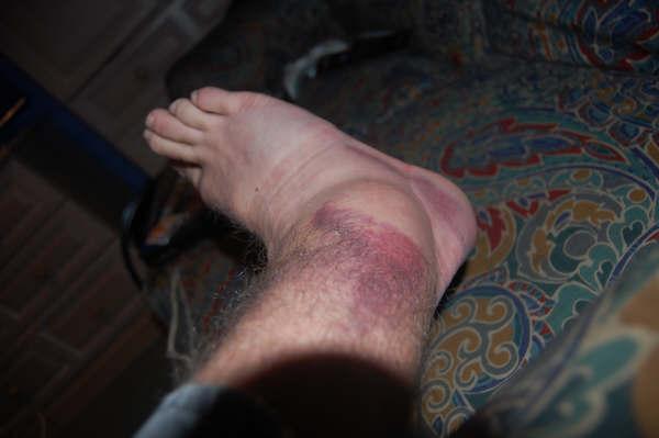 foot-004.jpg